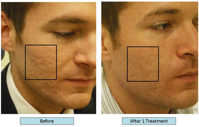 Dr Richard Balikian Now Can Treat Acne Scars With Lasers And Fillers Balikian Richard Drbalikian Com